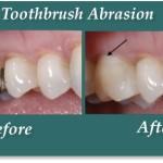 ToothbrushAbrasion