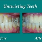 Untwisting Teeth