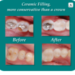 Ceramic Fillings