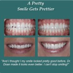Prettier Smile